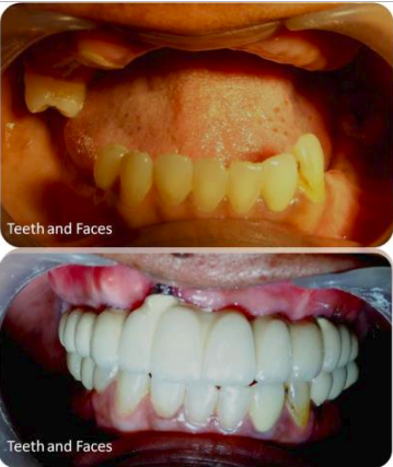 Screenshot of Implant supported full mouth fixed prosthesis