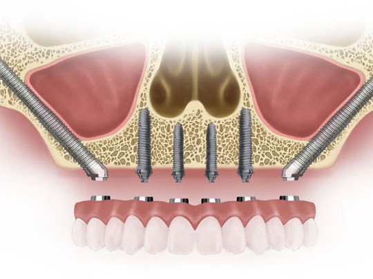 zygomatic implant study blog