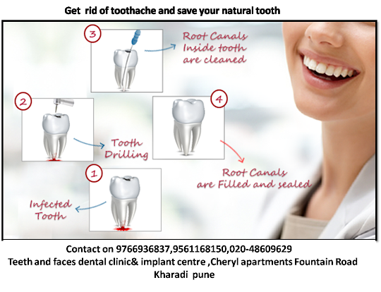 root canal treatment implant blog
