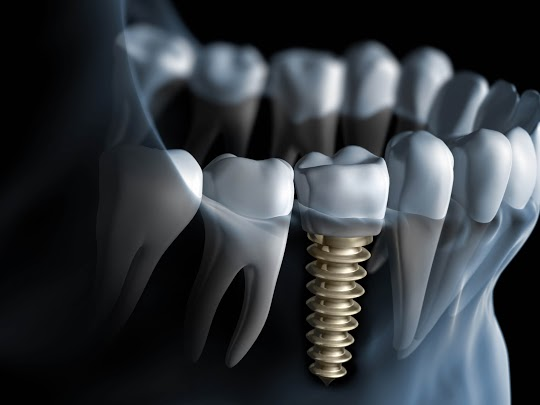 free consultation at dental implant center