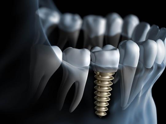 free consultation at dental implant center