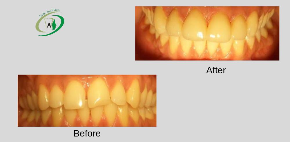 smile design before after