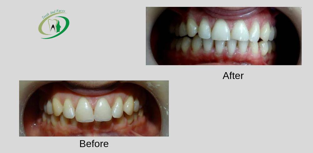 front teeth beautification