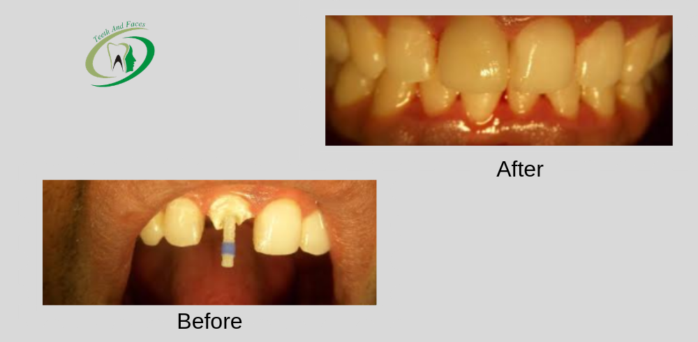 tooth decay cavities blog