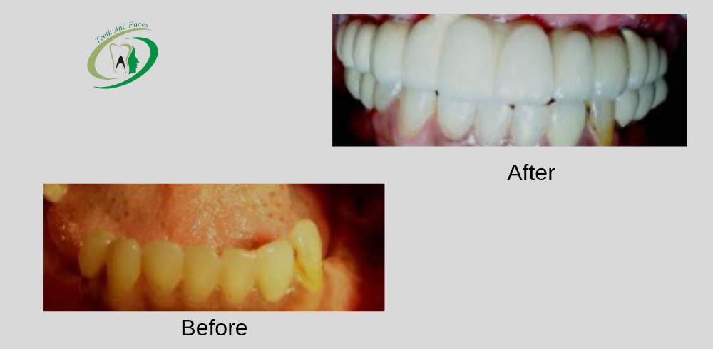 before after teeth and faces