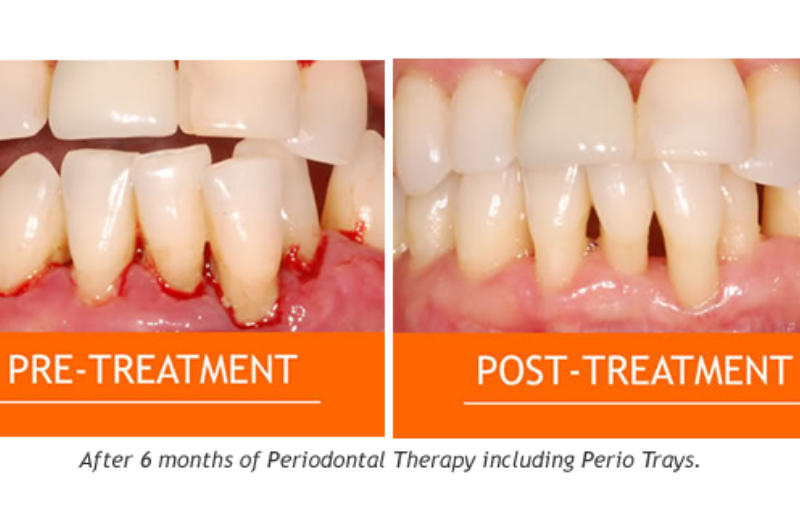 Gum-Disease-and-Treatment2