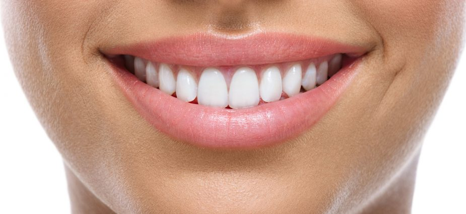 beautification of front teeth