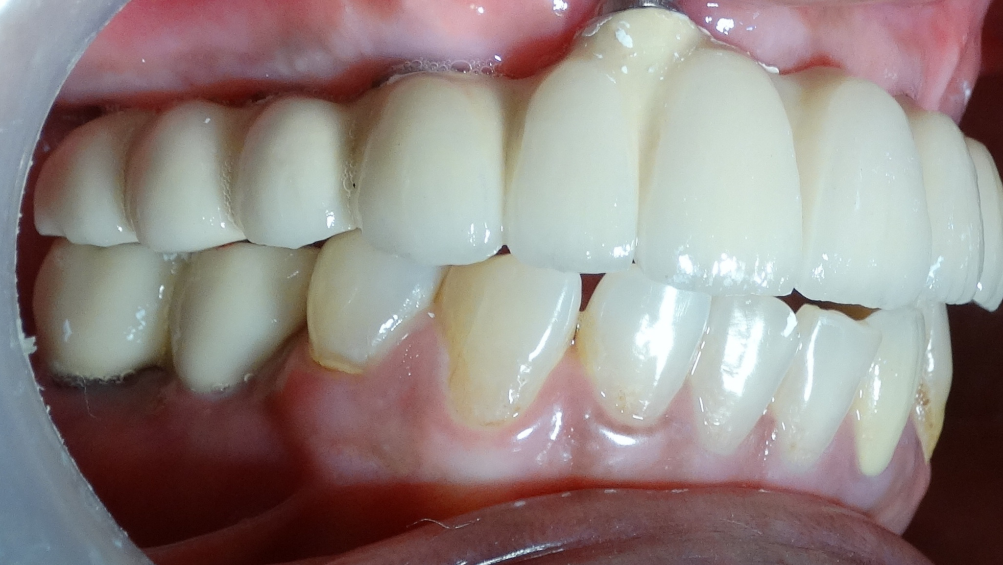 implant supported fix teeth